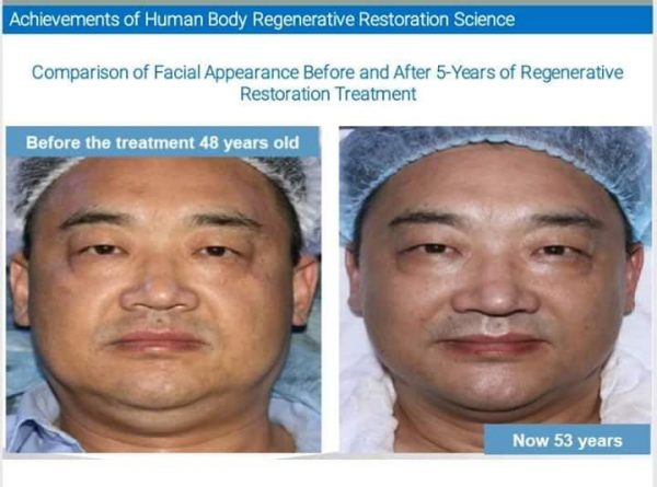 Look younger with MEBO GI